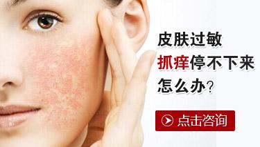 贵阳治皮肤过敏